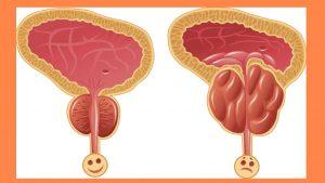 tratamento-da-disfuncao-eretil