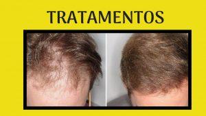 vitamina-para-queda-de-cabelo